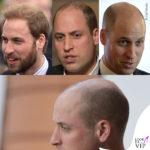 William e la pelata (quasi) perfetta