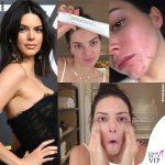 Kendall Jenner, l'acne fa infuriare i fan