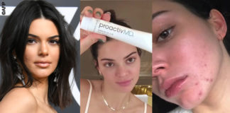 Kendall Jenner Proactiv 7