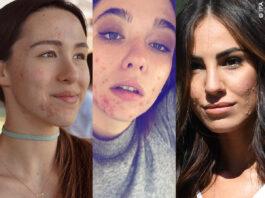 star con i brufoli, anche le bellissime hanno l'acne