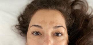 Giorgia Surina macchie sulla pelle: vitiligine?